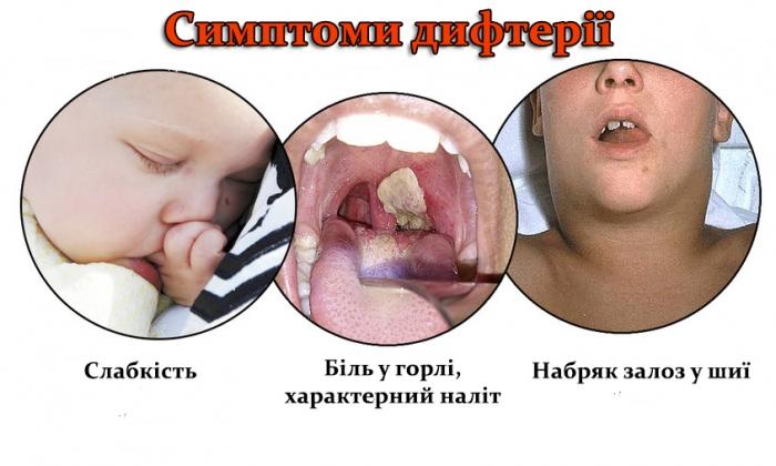 Останні випадки захворювання на дифтерію в Закарпатті фіксувались ще у 90-тих...